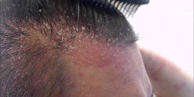Torr hårbotten