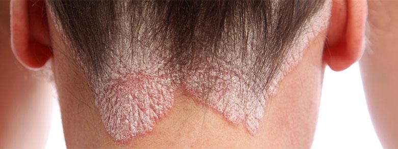 psoriasis hårbotten bilder