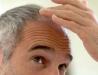 Huskurer & tips mot en hårbotten som är överdrivet torr